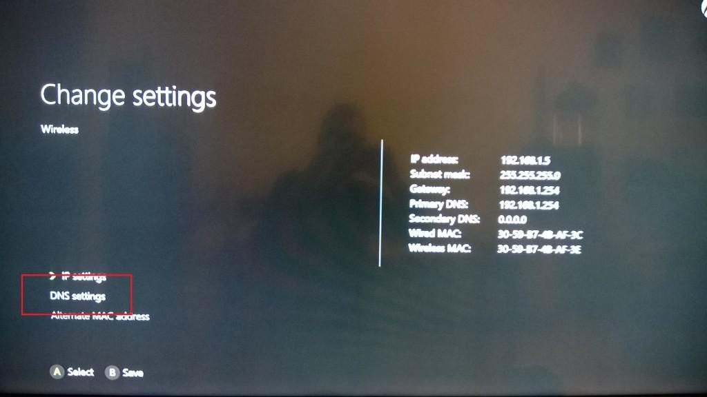 Xbox One SMartDNS setup